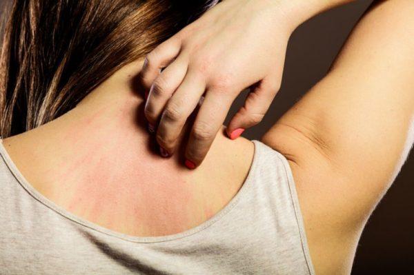 การรักษาทำความสะอาดร่างกาย เพื่อให้ห่างไกลจาก โรคผิวหนัง