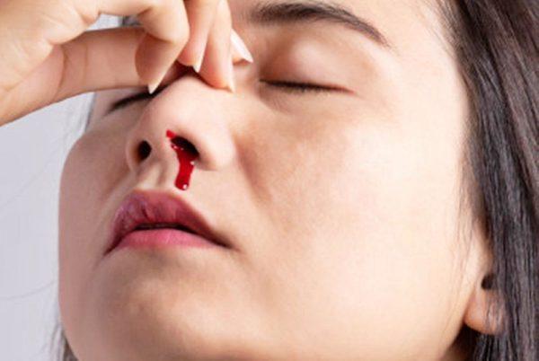 เลือดกำเดาไหล หลายคนคงเคยได้ยินว่าเวลาที่เลือดกำเดาไหลห้ามเงยหน้า